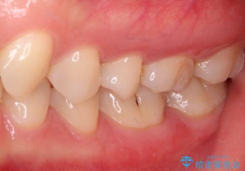 セラミックとゴールド 奥歯のむし歯治療の治療後