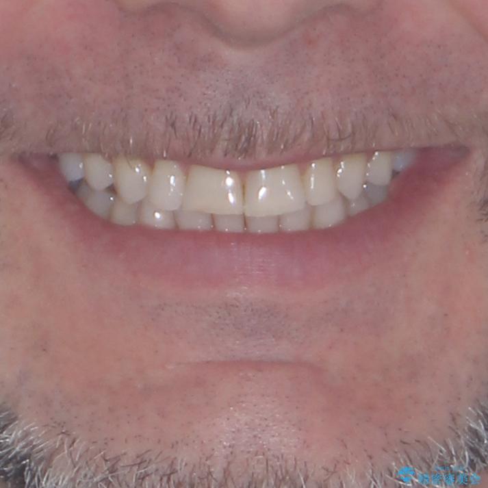 抜歯矯正の後戻りが気になる インビザライン・ライトによる矯正治療の治療後(顔貌)