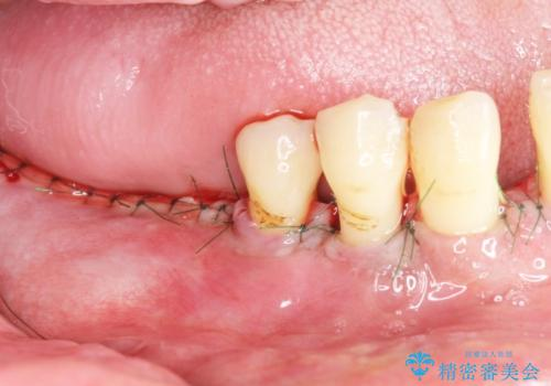 歯がぐらぐら 再生療法で抜かずに残す 50代男性の治療中