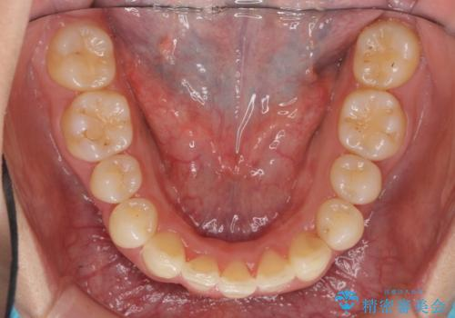 出っ歯 下の歯のガタガタ 下の前歯のみ1本抜歯 マウスピースで1年の治療後