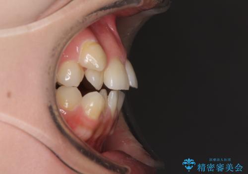 目立ちにくい抜歯矯正 ハーフリンガルの治療前