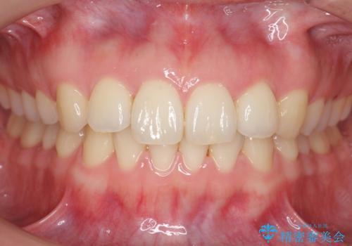 下の前歯が1本短い インビザラインと部分矯正の組み合わせの症例 治療後