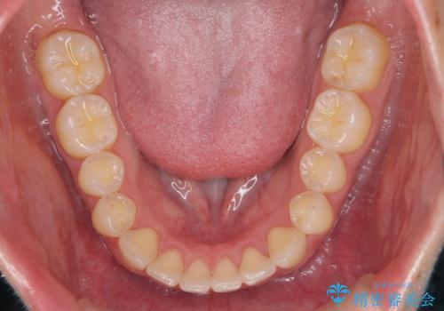 下の前歯が1本短い インビザラインと部分矯正の組み合わせの治療後