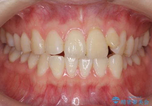 前歯が気になる 大人のマウスピース矯正 矮小歯を整えるの症例 治療前