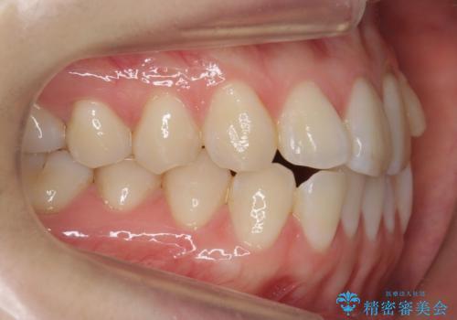前歯が気になる 大人のマウスピース矯正 矮小歯を整えるの治療前
