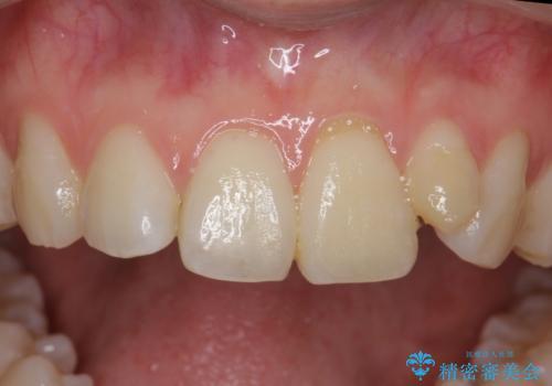 小さい前歯を整える セラミック矯正の症例 治療前