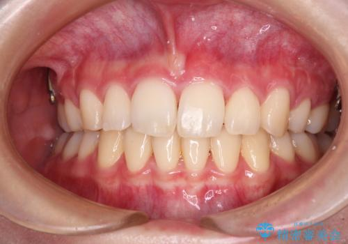 治療途中で転院 抜歯矯正の仕上げ治療の治療後