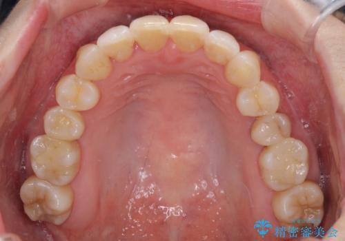 急速拡大装置で奥歯の咬み合わせを改善 インビザラインによる矯正治療の治療後