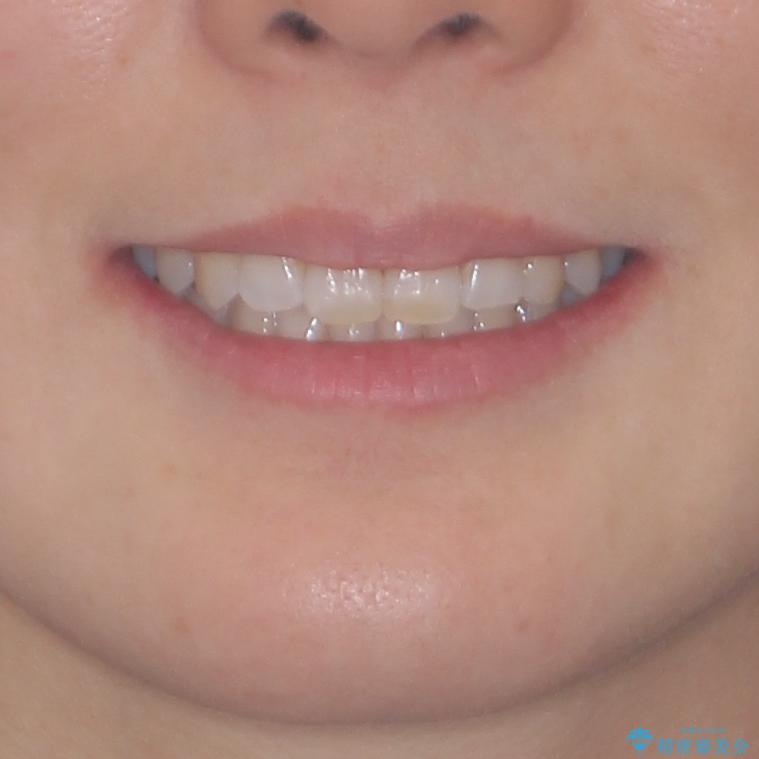 急速拡大装置で奥歯の咬み合わせを改善 インビザラインによる矯正治療の治療後(顔貌)