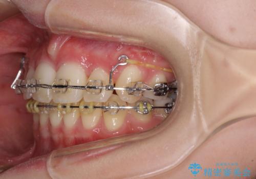 治療途中で転院 抜歯矯正の仕上げ治療の治療前