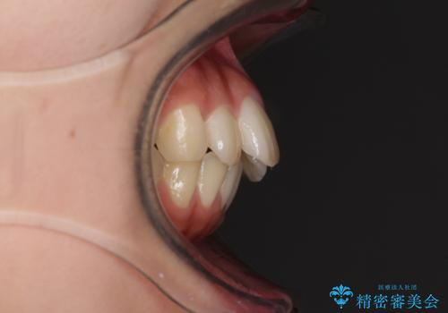 就職前にきれいな歯並びにしたい 大学生のインビザライン矯正の治療前