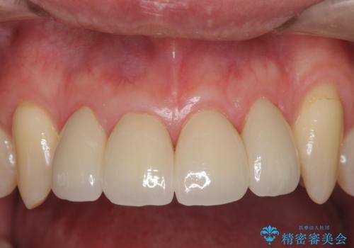前歯のすき間 セラミックで綺麗に 最短で治療の症例 治療後