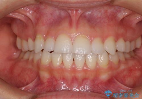 目立ちにくい抜歯矯正 ハーフリンガルの治療後