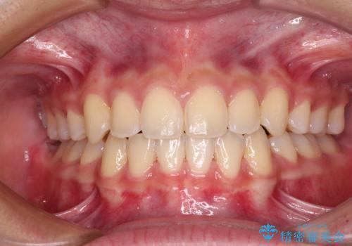 上下顎前突の症例 治療後