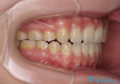 話しにくいオープンバイト ワイヤー装置による抜歯矯正治療の治療後