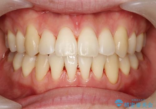 プラークなどによる歯の黄ばみの治療後