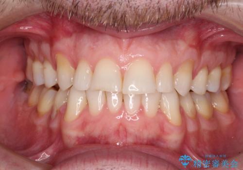 抜歯矯正の後戻りが気になる インビザライン・ライトによる矯正治療の治療後