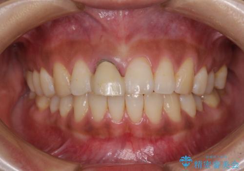 折れているのに応急処置でごまかしてきた前歯 オールセラミックブリッジによる補綴治療の治療前