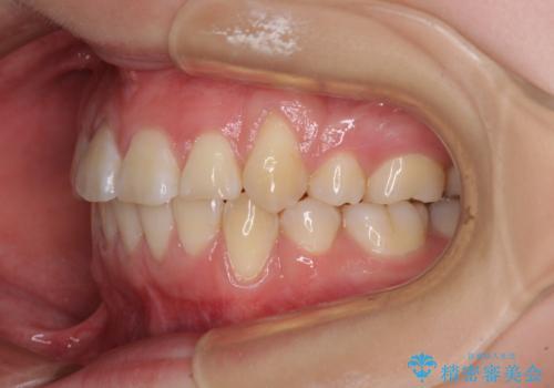 前歯が磨きにくい 目立たないワイヤー装置による矯正治療の治療後