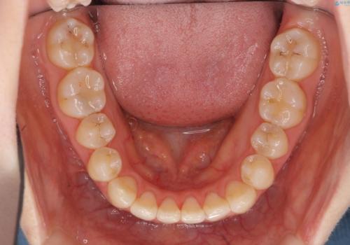 前歯が気になる 大人のマウスピース矯正 矮小歯を整えるの治療後