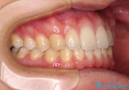 前歯のクロスバイトと抜歯が必要な奥歯の虫歯 インビザラインとインプラント治療の治療後