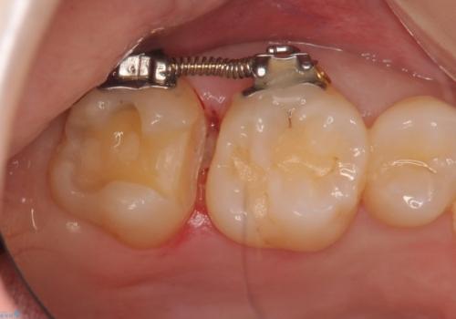奥歯の虫歯 歯の間を広げてセラミックでしっかり治療の治療中
