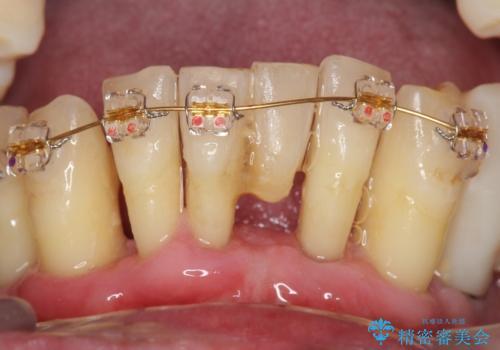 他院で抜歯と言われた歯 歯も神経も残したい 50代男性の治療中