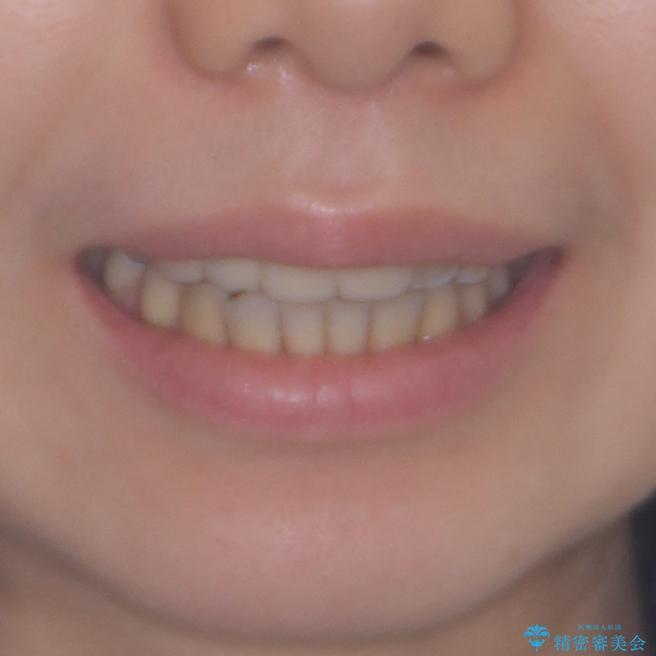 転んで前歯が欠けた 折れた前歯をきっかけに矯正治療で歯列をきれいに整えるの治療後(顔貌)