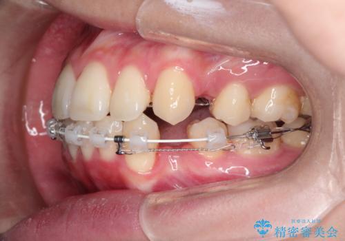 口元が出てるの気になる ハーフリンガルによる抜歯矯正での横顔改善の治療中