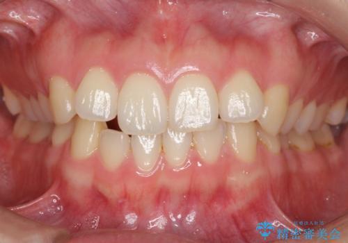 下の前歯が1本短い インビザラインと部分矯正の組み合わせの症例 治療前