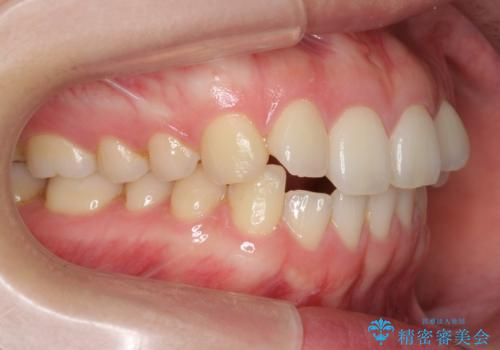 下の前歯が1本短い インビザラインと部分矯正の組み合わせの治療前
