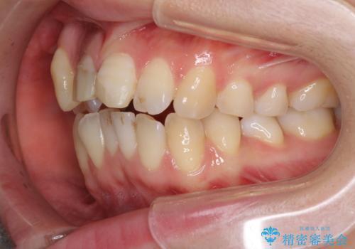 転んで前歯が欠けた 折れた前歯をきっかけに矯正治療で歯列をきれいに整えるの治療前