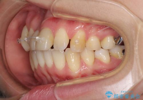 転んで前歯が欠けた 折れた前歯をきっかけに矯正治療で歯列をきれいに整えるの治療中