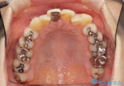 [ 矯正と補綴、総合歯科治療 ]  クロスバイトを避ける前歯部審美ブリッジの治療前