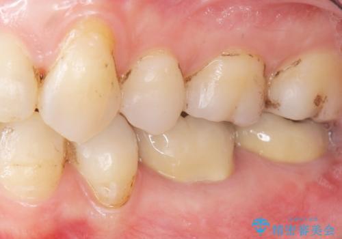 低予算で銀歯を白くしたい 50代女性の治療後
