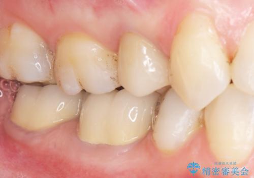低予算で銀歯を白くしたい 50代女性の症例 治療後