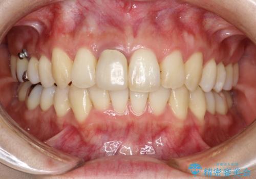 上下のガタガタのマウスピースによる非抜歯矯正の症例 治療後