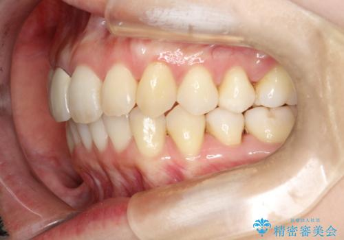 上下のガタガタのマウスピースによる非抜歯矯正の治療後