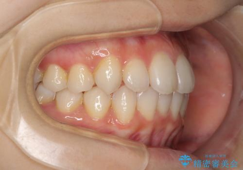 インビザラインを用いた非抜歯矯正の治療中
