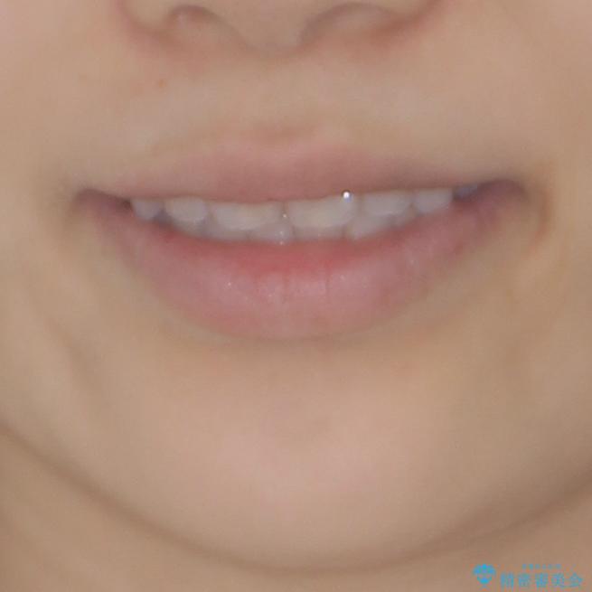 インビザラインを用いた非抜歯矯正の治療後(顔貌)