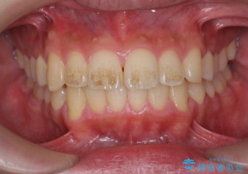 歯の表面に付着したステインをPMTCで除去。の症例 治療前