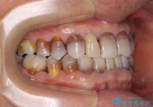 下の歯が前に出てしまう咬み合わせを治したい インビザラインによる矯正治療の治療後