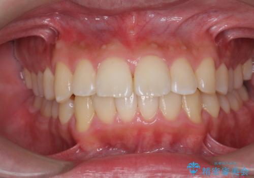 歯の表面に付着したステインをPMTCで除去。の症例 治療後