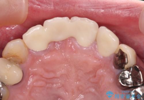 鼻の下を押すと痛い 抜歯を避けてきた歯を抜歯して自然な口元にの治療後