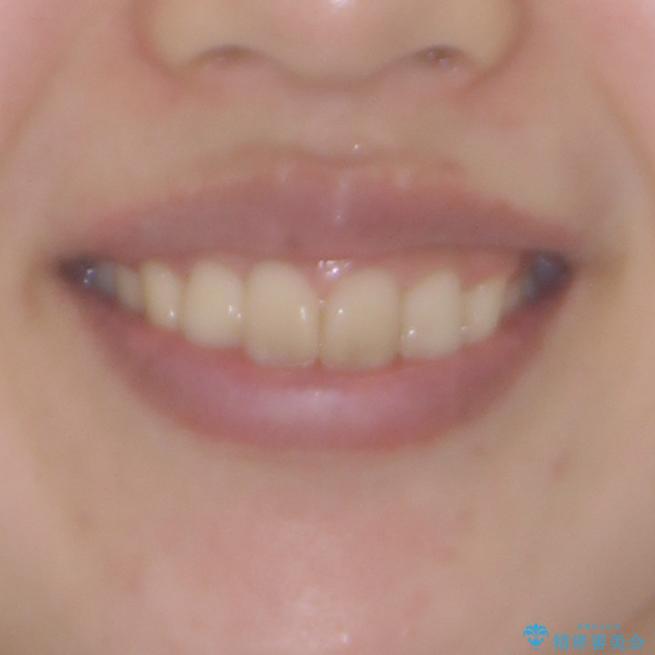 就職前にきれいな歯並びにしたい 大学生のインビザライン矯正の治療後(顔貌)