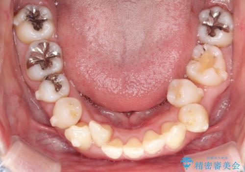 上下のガタガタのマウスピースによる非抜歯矯正の治療中