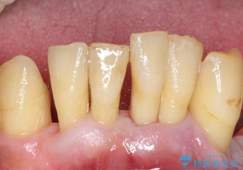 他院で抜歯と言われた歯 歯も神経も残したい 50代男性の症例 治療前