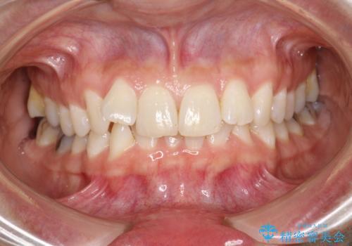 前歯のガタガタをインビザラインで矯正の治療前