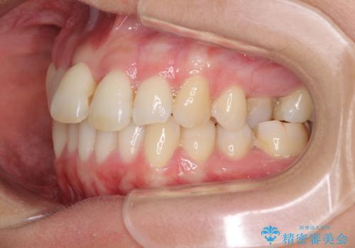 急速拡大装置で奥歯の咬み合わせを改善 インビザラインによる矯正治療の治療中