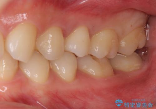 奥歯の虫歯 歯の間を広げてセラミックでしっかり治療の治療後